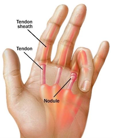 a kis ujj kezelése