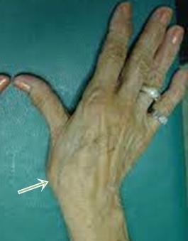 a hüvelykujj fáj az ízületben