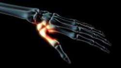 kronikus-artrozis